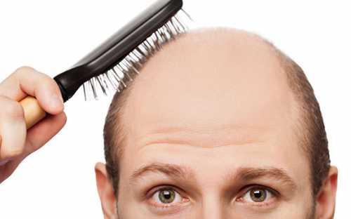 выпадение волос на нервной почве: вам помогут натуральные масла